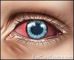Pink eye / Conjunctivitis