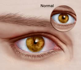 13_Horner Syndrome