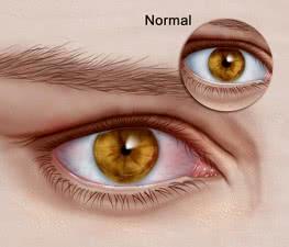 13_Horner Syndrome