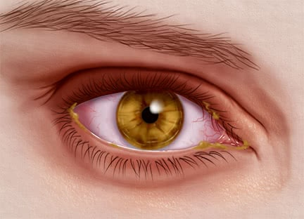 16_Eye Infection