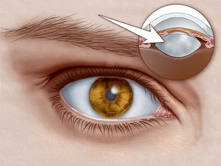 Cataracts Do You Have Them See Symptoms Causes Treatment