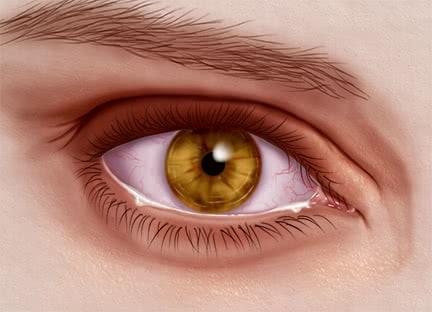 18_Dry Eyes