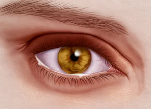 Itchy Eyes: Causes, Symptoms, and Relief