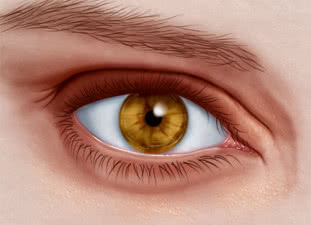 Puffy Eyes - Causes & Remedies for Swollen Puffy Eyes