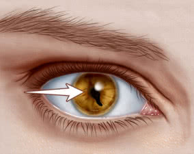 coloboma — symptoms, causes, and management, Skeleton