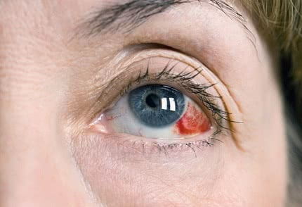 broken blood vessel in eye