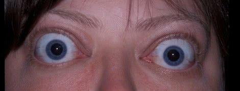 bulging eyes / proptosis