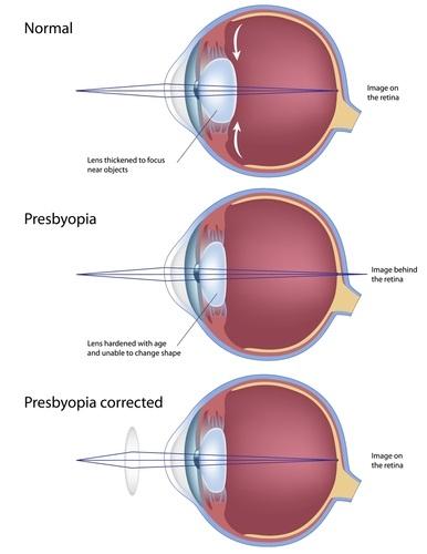 presbyopiapic
