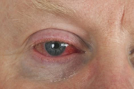 Red Bloodshot Eyes: Causes and Treatment Options