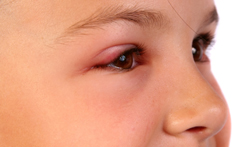 Swollen Eyelids: Causes, Treatment and Quick Home Remedies